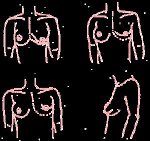 Seins Tubereux - Chirurgie Esthetique Paris: Docteur Anne ...